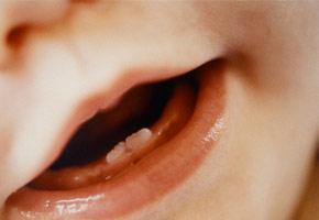 primi denti bambino