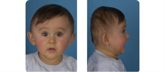 La Forma Della Testa Del Neonato Bravi Bimbi