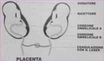 Trasfusione sanguigna feto-fetale
