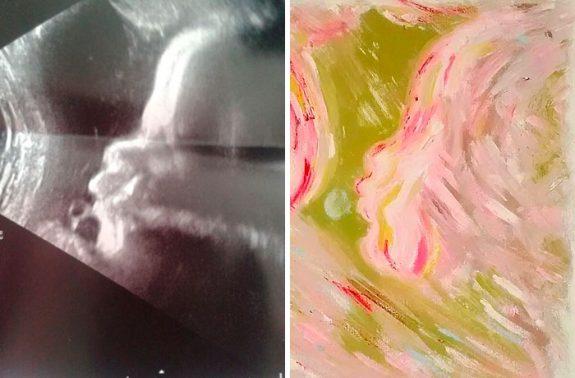 trasforma le ecografie in opere d'arte